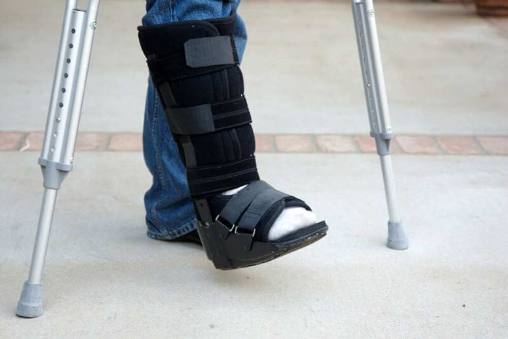 Can I Wear a Boot for a Sprained Ankle